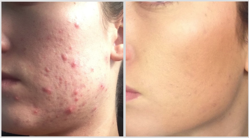AHA_BHA Skin Exfoliation Before and After